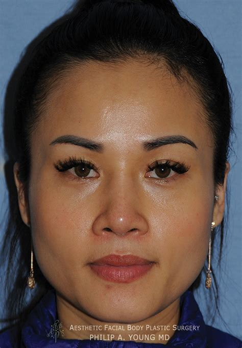 Asian Rhinoplasty Before & After Photos Seattle Bellevue