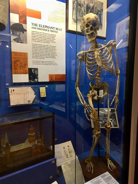 The Elephant Man – Find Out About the Life of Joseph Merrick