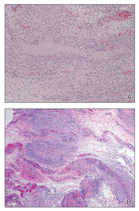 Granuloma Annulare Presenting as Firm Nodules on the