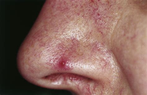 Cutaneous lesions of the nose   Head & Face Medicine